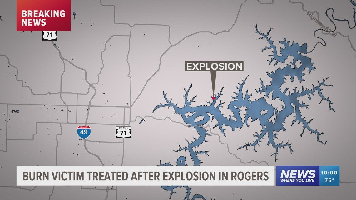 Home explosion in Rogers, 1 burn victim reported