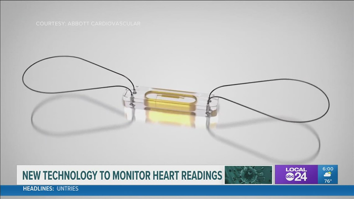 'It gives us a daily peace of mind'; MS couple thankful for new technology, allowing daily heart monitors at home