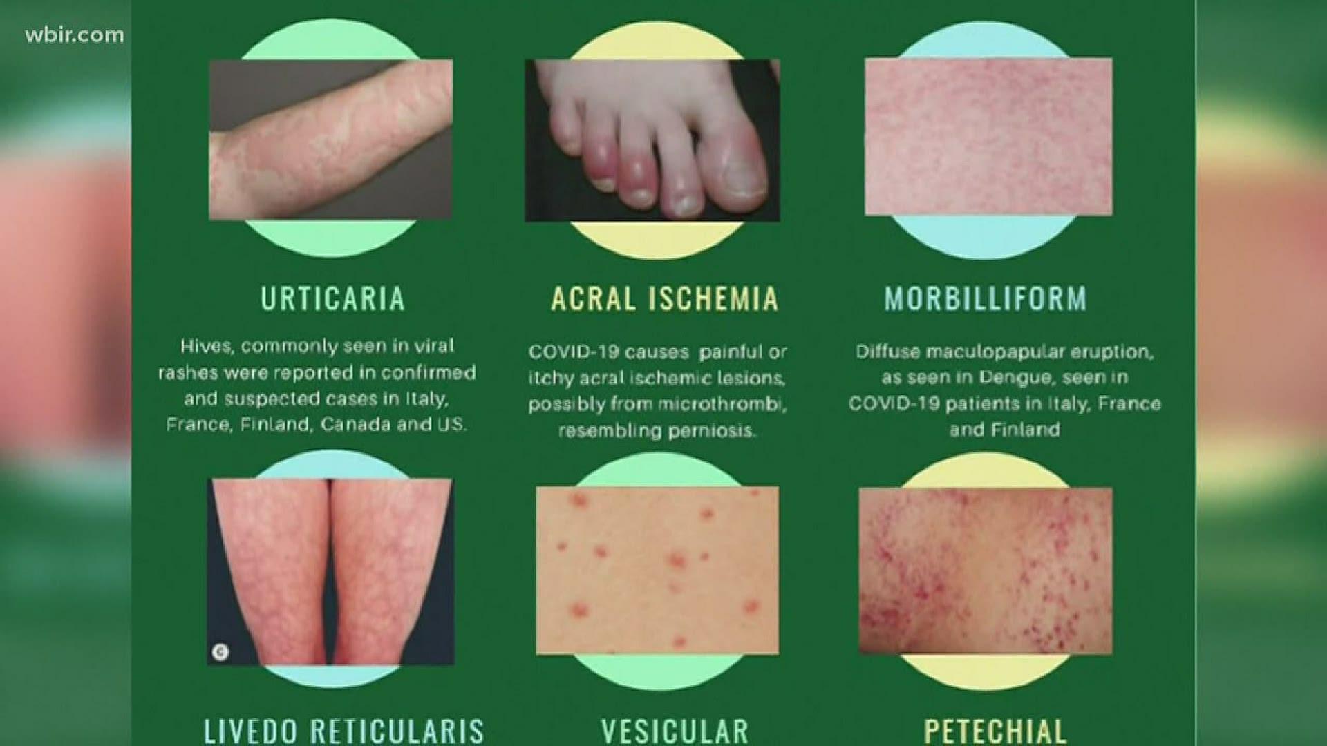 Doctor Skin Rash Could Be A Symptom As Possible Covid 19 Symptom Localmemphis Com