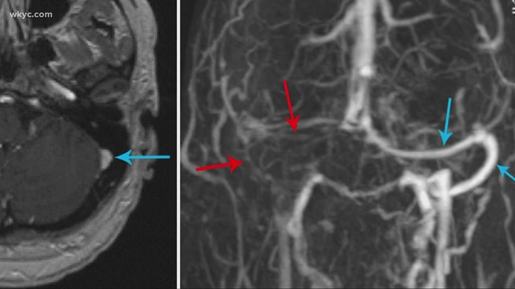 Blood clots, stroke are now potential side effects of COVID-19