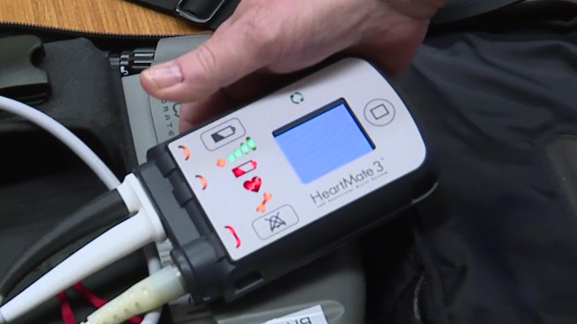 Healthwatch 16: How a device called LVAD could save your life