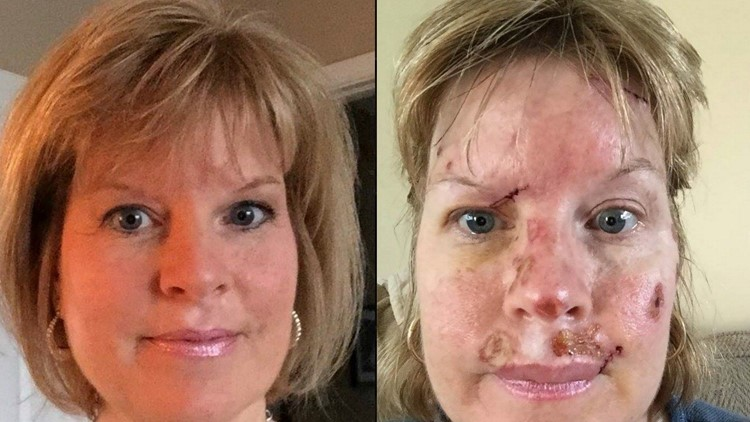 Woman With Skin Cancer Shares Graphic Photos Warns Of Tanning Bed Use Wqad Com