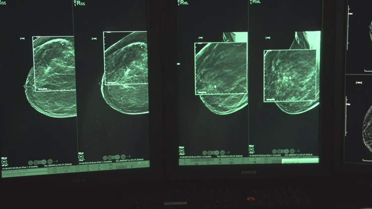 YOUR HEALTH: 3-D breasts