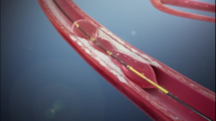 YOUR HEALTH: A shockwave to your clogged arteries