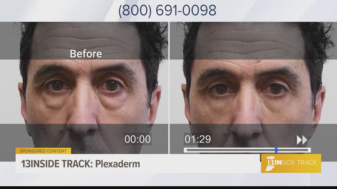 13INside Tracks learns how Plexaderm helps you take control of your skin