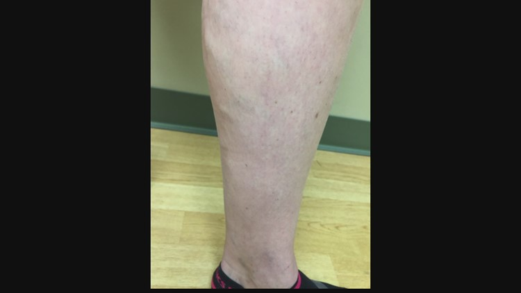 Check Up 13: Varicose veins
