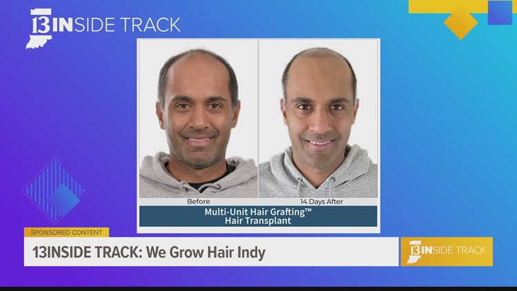 13INside Track visits the hair loss experts at Transitions of Indiana