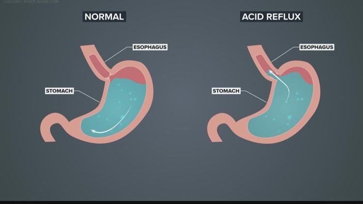 Check Up 13: Acid reflux