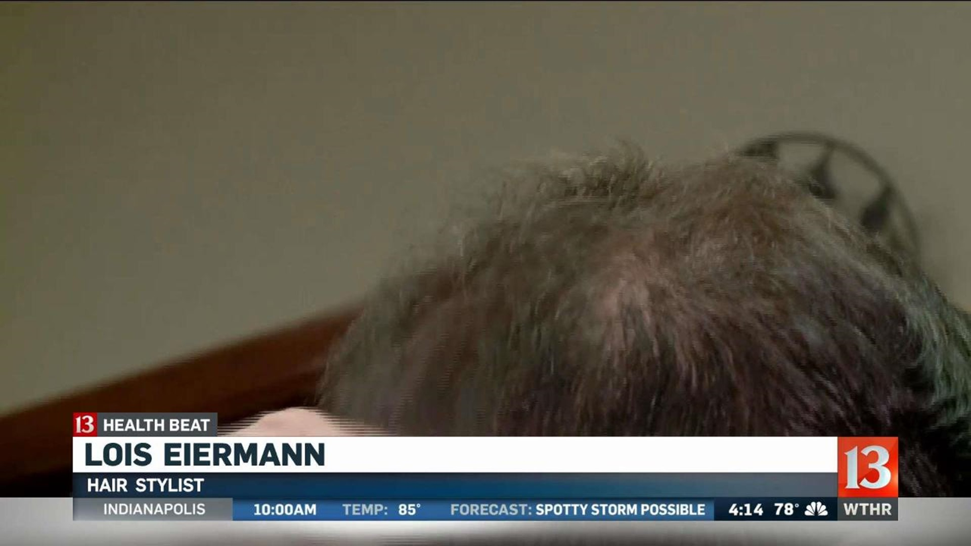 Hair Stylists Learn To Spot Skin Cancer Wthr Com